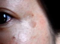 目の横のシミ
